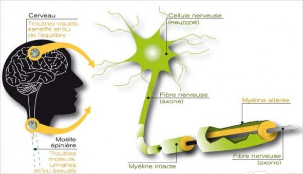 sclérose en plaques - demyelinisation
